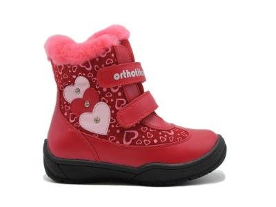 91b96eaa9 Ортопедическая обувь для детей при вальгусной деформации
